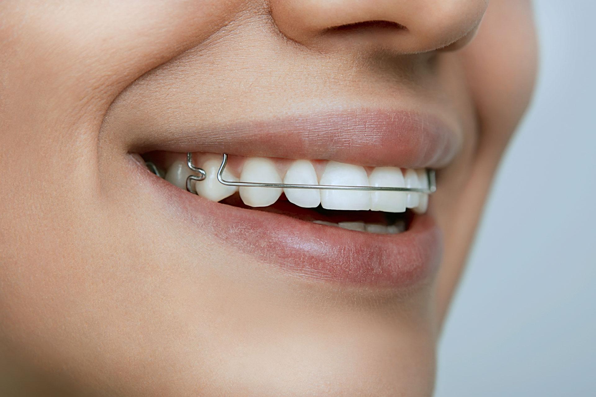 Brackets dentales Alcorcón